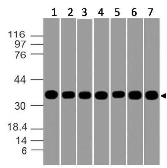 Figure-8: Western blot analysis of GAPDH. Anti- GAPDH antibody (Clone: ABM22C5) was used at 1 µg/ml on (1) PC3, (2) A549, (3)THP1, (4) Ramos, (5) HCT-116, (6) Raji and (7) MOLT-4 lysates.