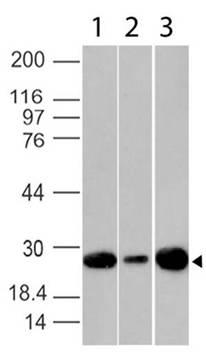 Monoclonal Antibody to Bcl-2 (Clone: BC1)