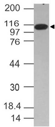 Fig-1: Western blot analysis of TLR6. Anti- TLR6 antibody (Clone: ABM1B50) was used at 2 µg/ml on Jurkat lysate.