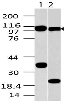 Fig-1: Western blot analysis of TLR9. Anti- TLR9 antibody (Clone: ABM1C51) was used at 2 µg/ml on (1) Raji and (2) EL4 lysates.