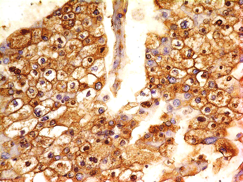 Fig-1: Immunohistochemical analysis of B7-H4 antibody in Renal cell carcinoma using anti-B7-H4 antibody (Clone: ABM53A6) at 5 μg/ml
