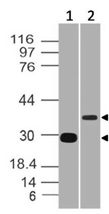 Figure-3: Western blot analysis of CD5L. Anti CD5L   (Clone: ABM55F1) was used at 0.5 µg/ml in Recombinant and 2 µg/ml in h spleen lysates.