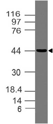 Monoclonal Antibody to OPG (Clone: ABM10D2 )