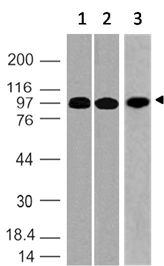 Monoclonal Antibody to RANK (CD265, TNF11aR, ODFR) (Clone: ABM10D5)