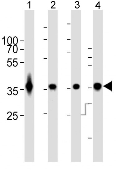 Mouse Monoclonal Antibody to GAPDH (Clone: 1A10A10)