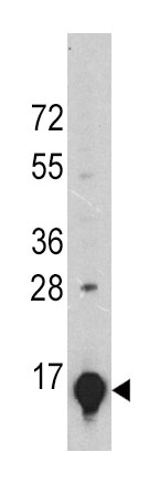 Mouse Monoclonal Antibody to GLT (Clone: 24CT661.4.3)