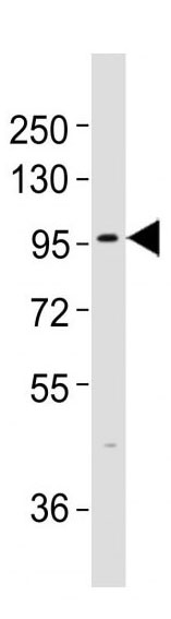 Mouse Monoclonal Antibody to TLR3 (Clone: 303CT19.9.2)