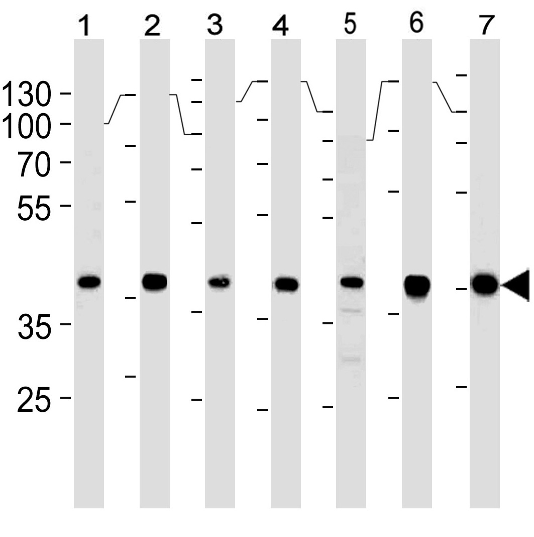 Mouse Monoclonal Antibody to Erk2 (Clone: 814CT5.4.2)