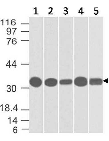 Fig-1: Western blot analysis of EpCAM. Anti- EpCAM antibody (Clone: ABM2C92) was used at 2 µg/ml on HCT116 lysate.