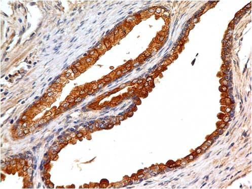 Fig-2 : Immunohistochemical analysis of EpCAM in human prostate tissue using EpCAM antibody (Clone: ABM2C92) at 5 µg/ml.