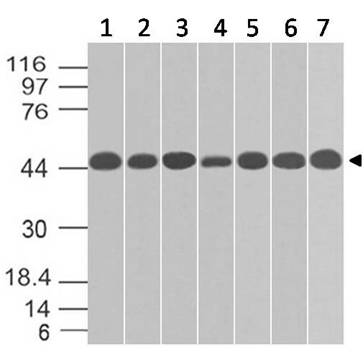 Monoclonal Antibody to TOX-3 (Clone: ABM44A1)