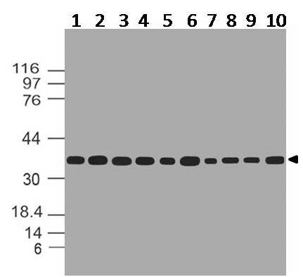 Figure-2: Western blot analysis of  GAPDH. Anti- GAPDH antibody (11-13024) was used at 1 µg/ml on (1) r Brain, (2) r Heart, (3) r Kidney, (4) r Liver, (5) r Lung, (6) r Skeletal Muscle, (7) r Stomach, (8) r Spleen, (9) r Ovary, (10) r Testis lysates.