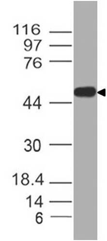 Polyclonal Antibody to SARS-CoV-2 nucleocapsid Protein