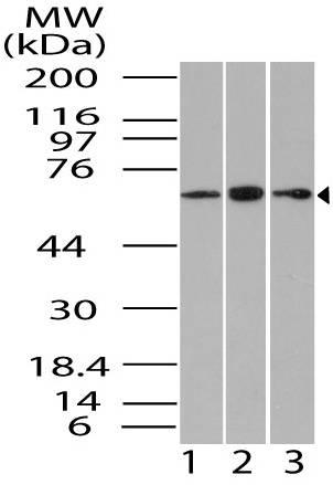 Fig-1: Western blot analysis of Gbp1. Anti- Gbp1 antibody (11-3031) was used at 4 µg/ml on  1) U87, 2) Jurkat and 3) Hela lysates.