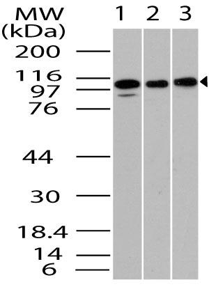Fig-1: Western blot analysis of  TLR1. Anti- TLR1 antibody (11-3041) was used at 4 µg/ml on (1) Jurkat, (2) EL4 and (3) Raji  lysates.