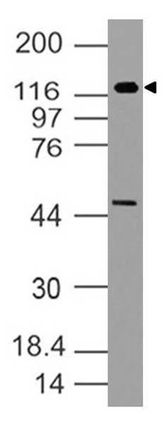 Figure-1: Western blot analysis of h TLR5. Anti-h TLR5 antibody (11-3047) was used at 2 µg/ml on Raji lysate.