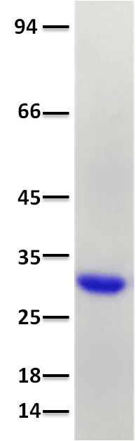 SARS CoV2 Spike RBD Protein His Tag (319-541aa)