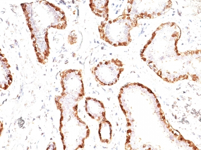 Monoclonal Antibody to Calponin-1 (Smooth Muscle Marker)(Clone : CNN1/832)