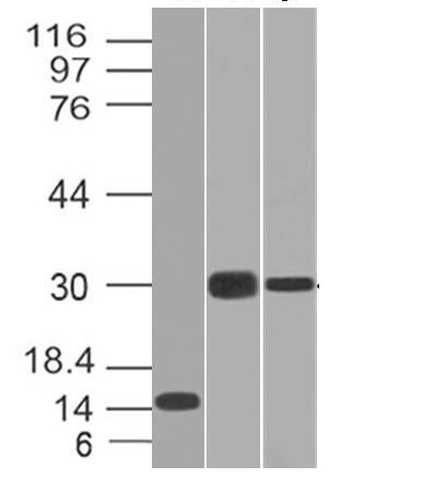 Western Blot of Recombinant, Panc-28 and PANC1 Cell Lysates using CELA3B Monoclonal Antibody (CELA3B/1218).