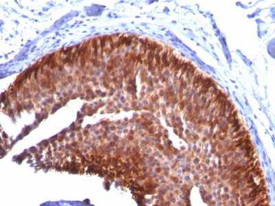 Monoclonal Antibody to Cytokeratin 17 (KRT17) (Basal Epithelial Marker)(Clone : KRT17/778)