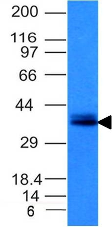 Monoclonal Antibody to Ep-CAM / CD326 (Epithelial Marker)(Clone : EGP40/1120)