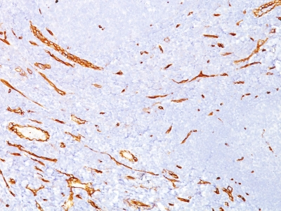 Monoclonal Antibody to CD34 (Hematopoietic Stem Cell & Endothelial Marker)(Clone : QBEnd/10)